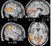 Human Echolocation - new publication by Flanagin et al.
